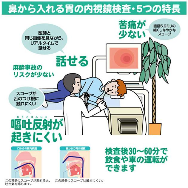 視 胃 検査 内 鏡